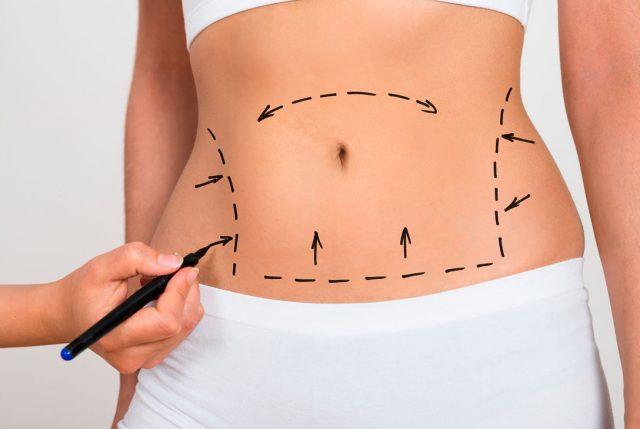 Indemnizacion negligencia abdominoplastia